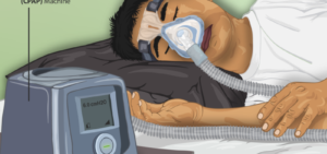 Best Pillows for CPAP Users